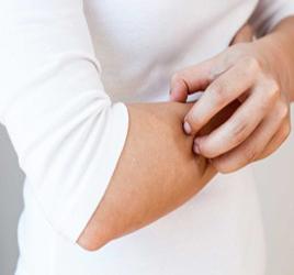 ۸ دلیل عمده خشکی فصلی پوست