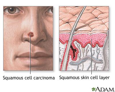 پیشگیری از سرطانهای پوستی