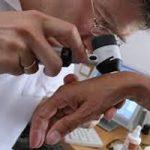 موثرترین راه پیشگیری از بیماری سرطان پوستی (سنگفرشی)