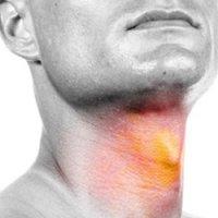 علائمی هشدار دهنده که نشان از سرطان حنجره میدهند
