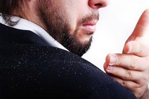 نکتههایی برای پیشگیری و درمان شوره سر در زمستان