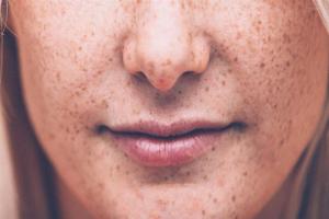 مقابله با سرطان پوست با داروی آرتریت روماتوئید