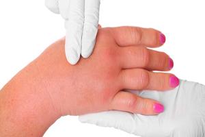 ۷ دلیلی که انگشتانتان متورم می شود