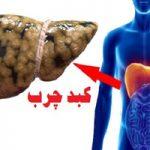 راهکارهایی طبیعی برای درمان فوری کبد چرب