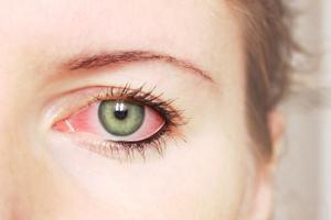 آنچه ترشحات چشم درباره سلامت شما فاش میکند