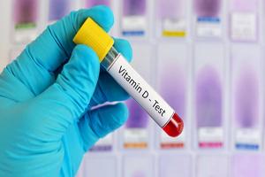 زمان ضروری آزمایش سنجش ویتامین D