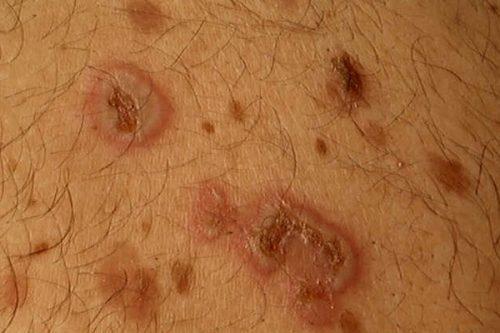 بیماری پوستی پمفیگوس
