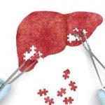 بهترین ورزش برای درمان کبد چرب   درمان کبد چرب را جدی بگیرید