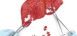بهترین ورزش برای درمان کبد چرب | درمان کبد چرب را جدی بگیرید