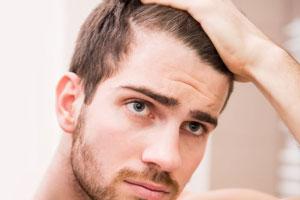 ۷ دلیلی که می گوید چرا دچار ریزش مو شده اید
