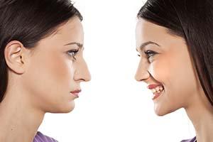 با جراحی بینی یا رینوپلاستی قدم به قدم آشنا شوید