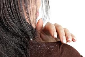 درمان شوره سر در کوتاه ترین زمان ممکن