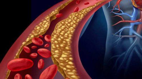 غذاهای رقیق کننده خون