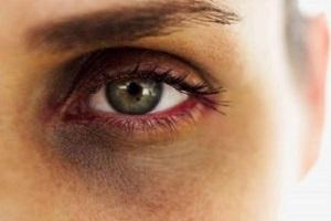 سیاهی دور چشم به چه علت رخ می دهد