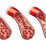 رژیم غذایی یک هفته ای برای کاهش تری گلیسرید خون
