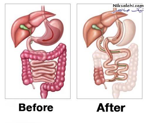 عوارض جراحی چاقی