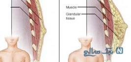 علت بزرگی سینه آقایان یا ژینوماستیک چیست