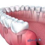 آشنایی با انواع ایمپلنت دندان، مزایا و معایب