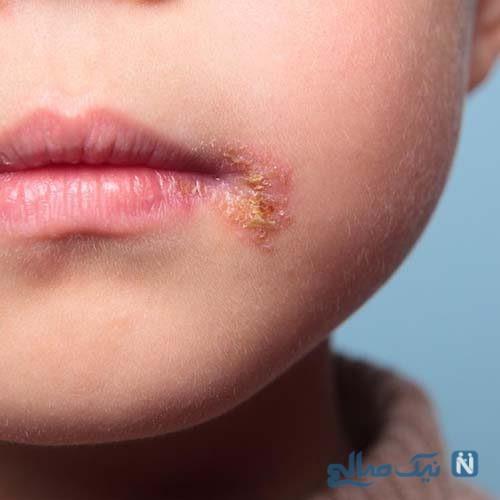 ۷ درمان خانگی موثر برای تب خال