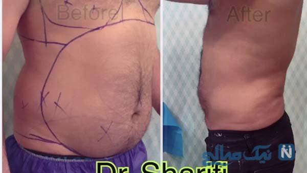 درمان چاقی با لیپوماتیک