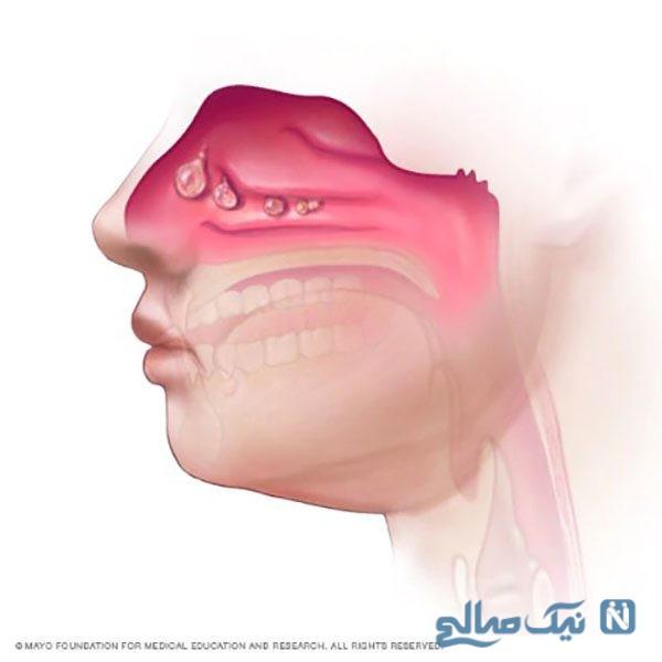 علایم و علل ایجاد پولیپ بینی