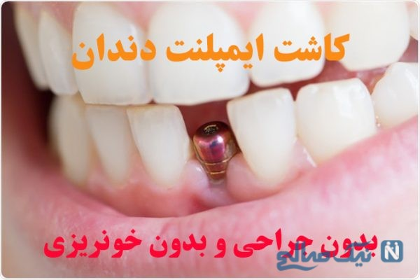 فیلم واقعی کاشت ایمپلنت دندان بدون جراحی و بدون خونریزی