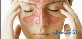 روش تشخیص سردرد سینوسی و درمان سریع آن در خانه