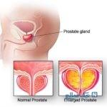 علت و علایم بزرگ شدن پروستات و روش های درمانی