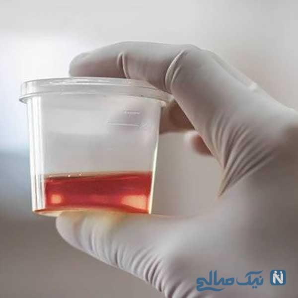 ۶ دلیل احتمالی وجود خون در ادرار
