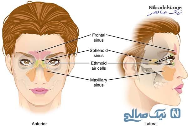 درمان سردرد سینوسی