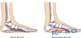 ۶ ورزش موثر برای درمان صافی کف پا