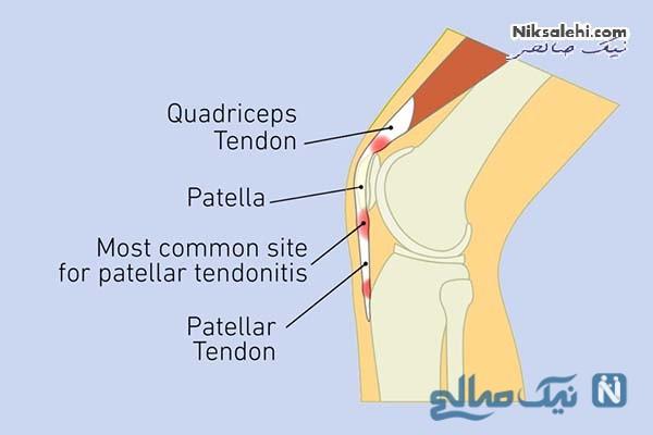 درمان درد پشت زانو