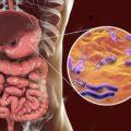 میکروب معده چیست و روش های خانگی برای درمان میکروب معده