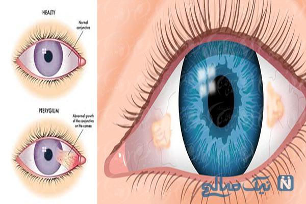 درمان ناخنک چشم