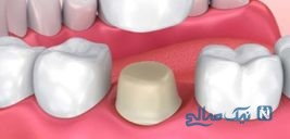 راهنمای مراقبت و مراحل روکش دندان و انتخاب جنس مناسب روکش دندان