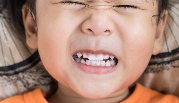 ساییدن دندان ها به هم