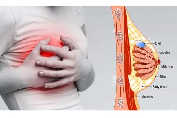 ۱۰ علت درد سینه زنان و روش های درمان