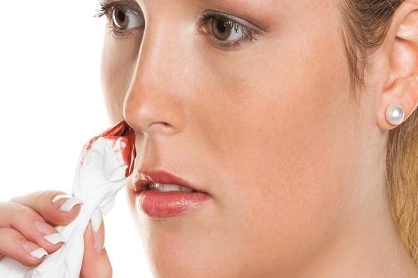 علل خون دماغ شدن و درمان آن