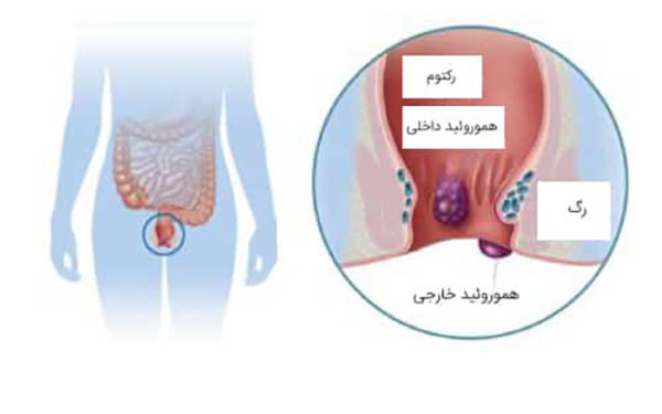 لیزر درمانی ، راه حل قطعی بیماری های نشیمنگاهی