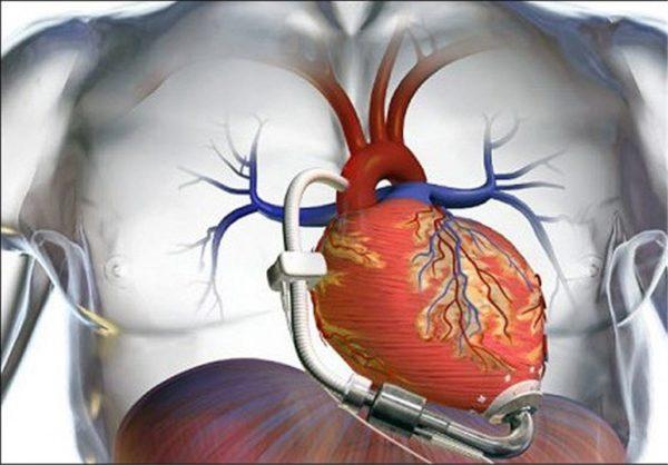 علل نارسایی قلبی