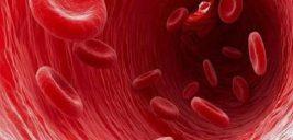 علائم کم خونی و چرا به این بیماری مبتلا می شویم