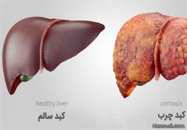 درمان سریع کبد چرب با مواد غذایی خوشمزه