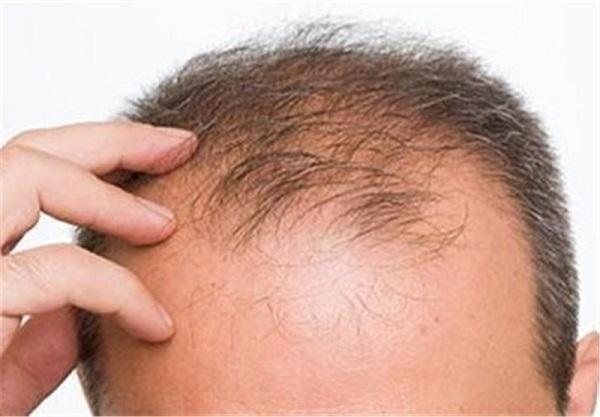 علت ریزش شدید مو و تهیه ماسک های خانگی موثر