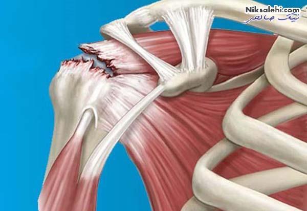 دلایل درد دست چپ و چه زمانی نشان دهنده سکته قلبی است