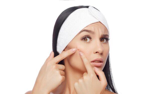 انواع جوش صورت و درمانهای خانگی فوقالعاده موثر برای آنها
