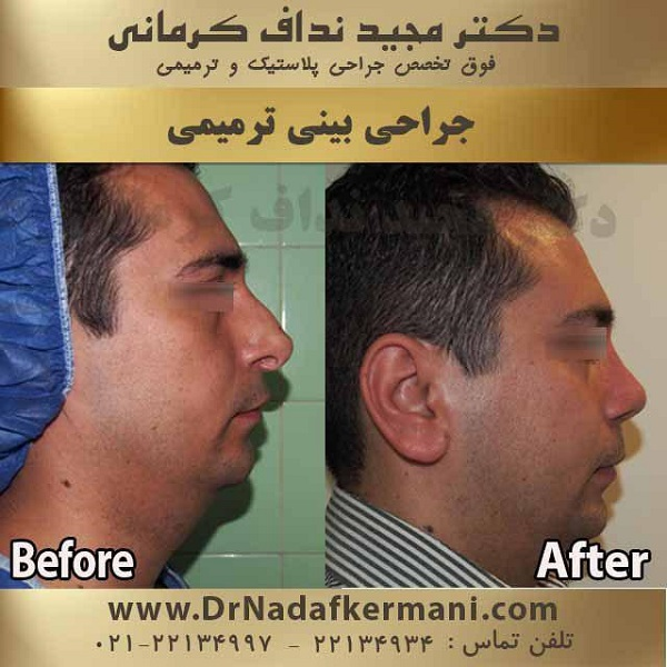 قبل از انجام جراحی بینی این نکات را بدانید