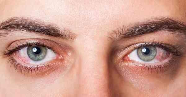 سوزش و خشکی چشم
