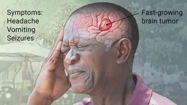 سردرد و تومور مغزی