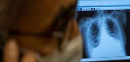مهمترین علایم درگیری ریه در کرونا