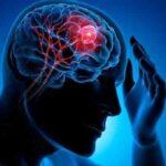 ارتباط مهم سردرد و تومور مغزی را بدانید
